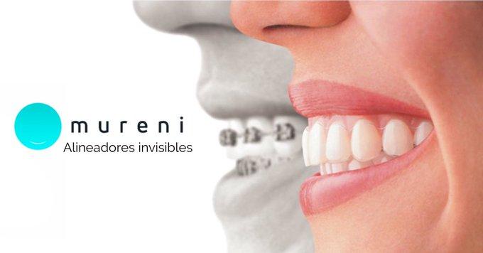Todos los beneficios de los alineadores dentales Mureni