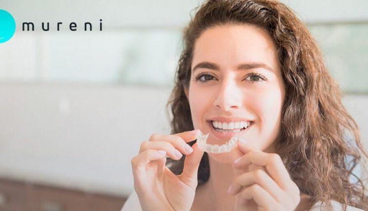 ¿Cómo Funcionan Los Alineadores Dentales?